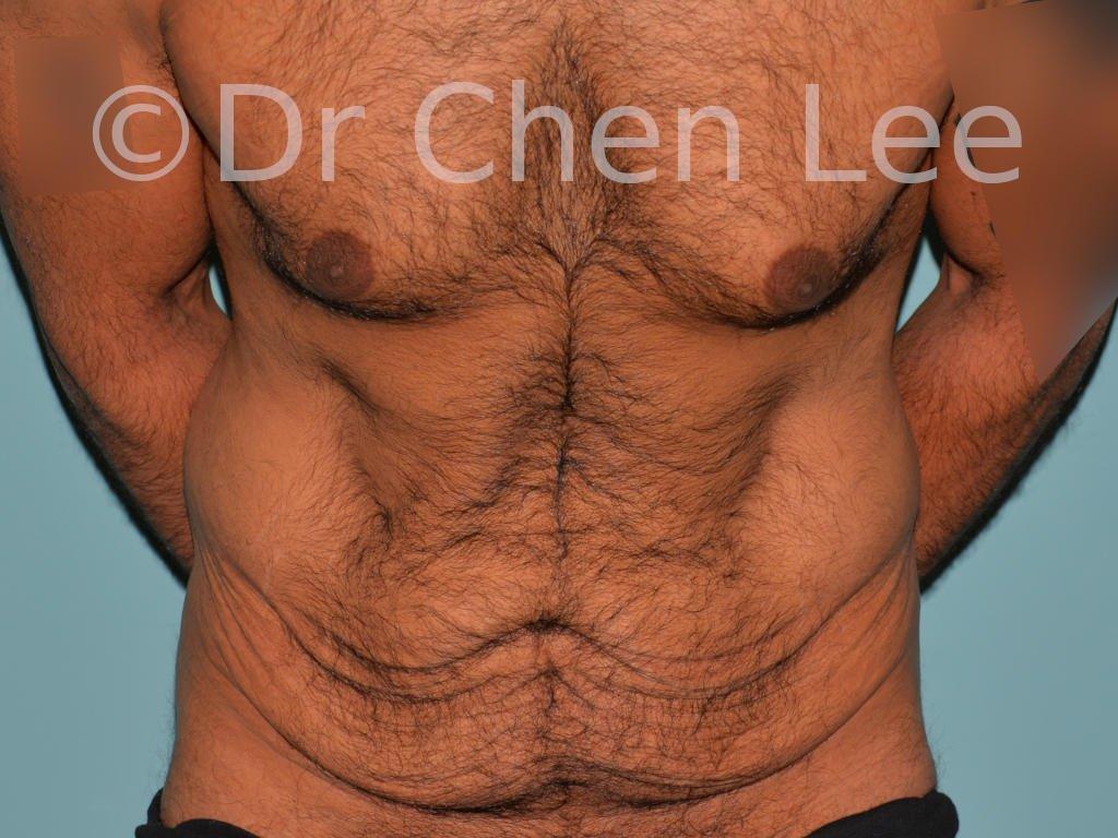 Abdominoplastie avant après redrapage abdomen photo face flex #10