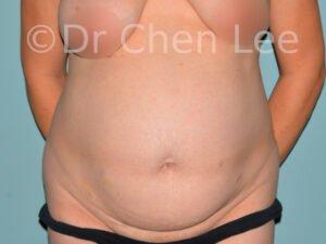 Abdominoplastie avant après redrapage abdomen photo face #04