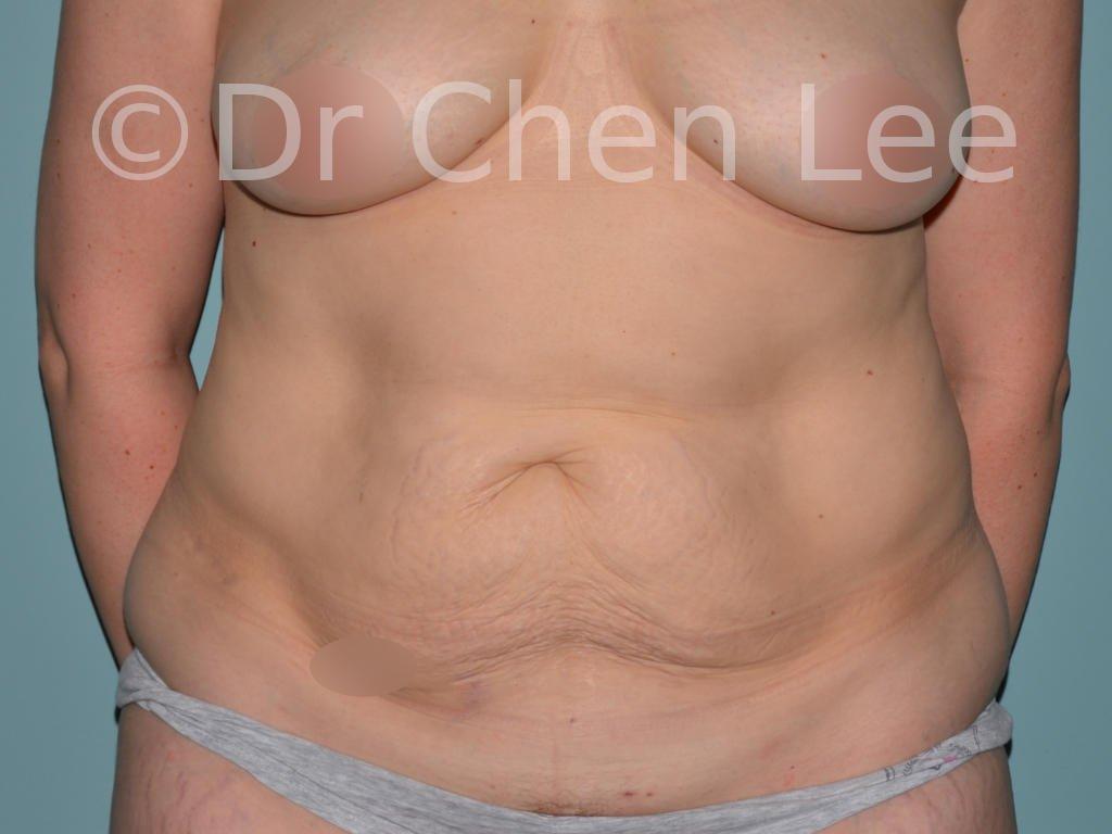 Abdominoplastie avant après redrapage abdomen photo face #12