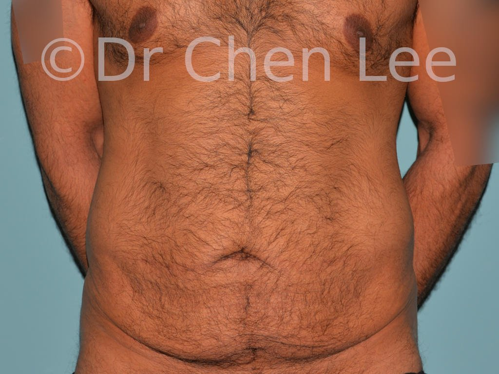 Abdominoplastie avant après redrapage abdomen photo face #10
