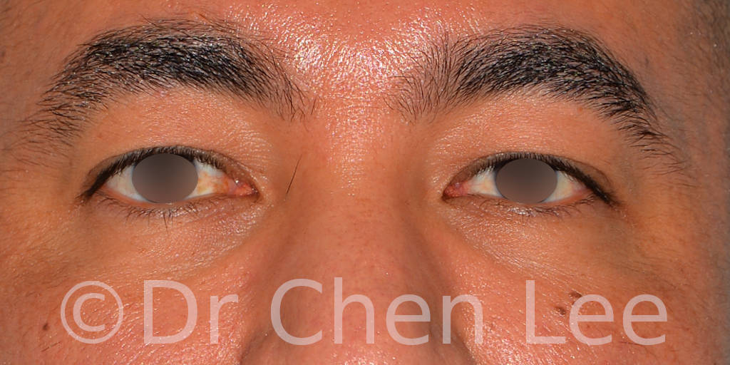 Blépharoplastie asiatique avant après chirurgie des paupières photo face #02