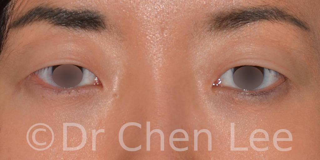 Blépharoplastie asiatique avant après chirurgie des paupières photo face #03