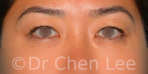 Blépharoplastie asiatique avant après chirurgie des paupières photo face #04