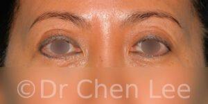 Blépharoplastie asiatique avant après chirurgie des paupières photo face #05
