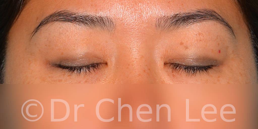 Blépharoplastie asiatique avant après chirurgie des paupières photo face fermée #04
