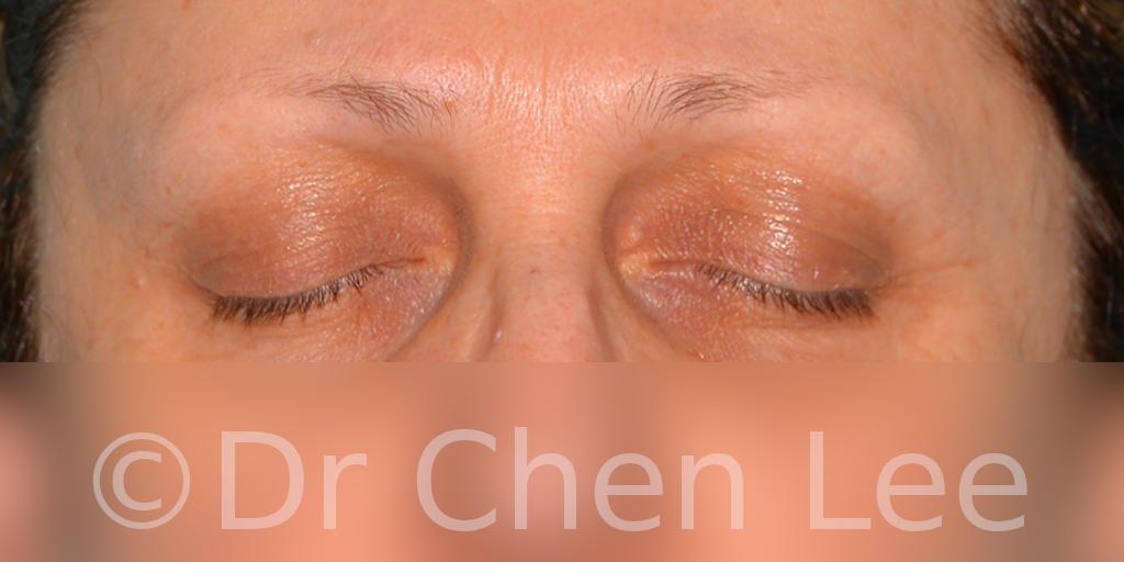 Chirurgie des paupières avant après blépharoplastie photo face fermée #08