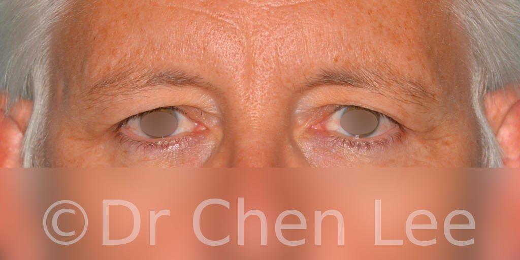 Chirurgie des paupières avant après blépharoplastie photo face #03
