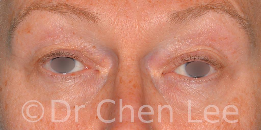 Chirurgie des paupières avant après blépharoplastie photo face #09