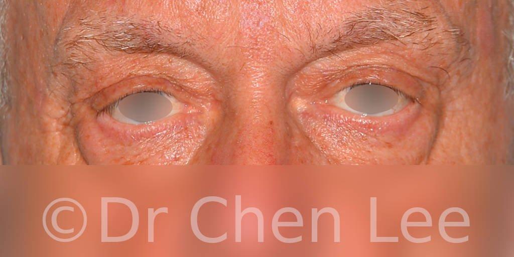 Chirurgie des paupières avant après blépharoplastie photo face #12