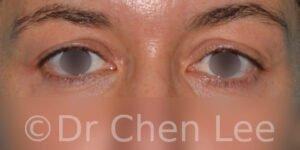 Chirurgie des paupières avant après blépharoplastie photo face #01