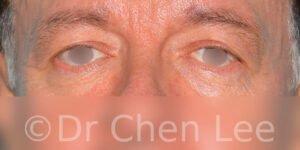 Chirurgie des paupières avant après blépharoplastie photo face #06