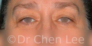 Chirurgie des paupières avant après blépharoplastie photo face #11