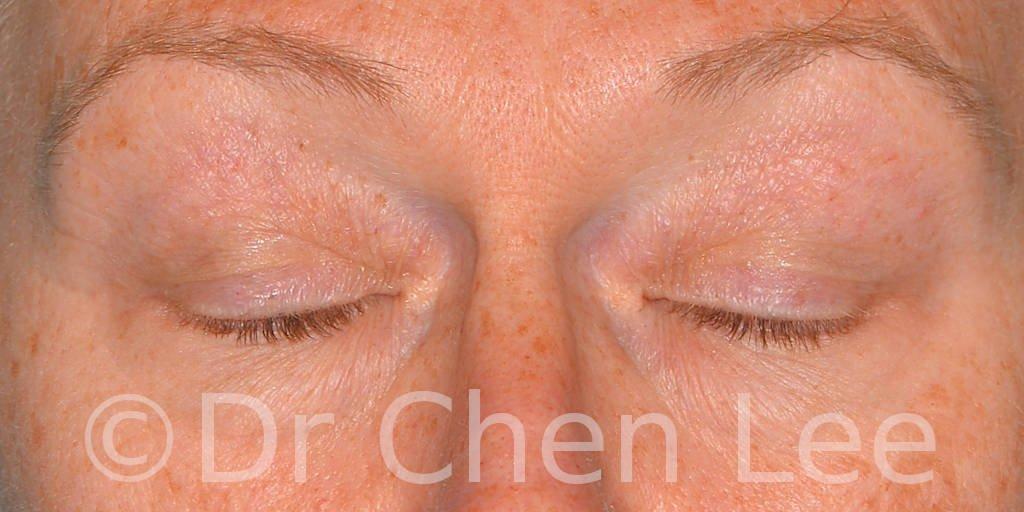 Chirurgie des paupières avant après blépharoplastie photo face fermée #09