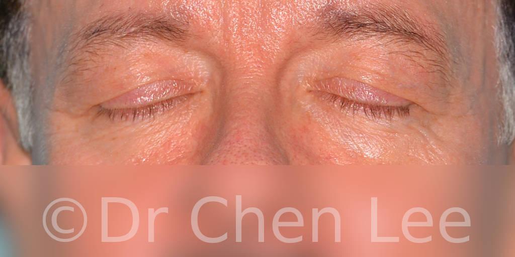Chirurgie des paupières avant après blépharoplastie photo face fermée #06