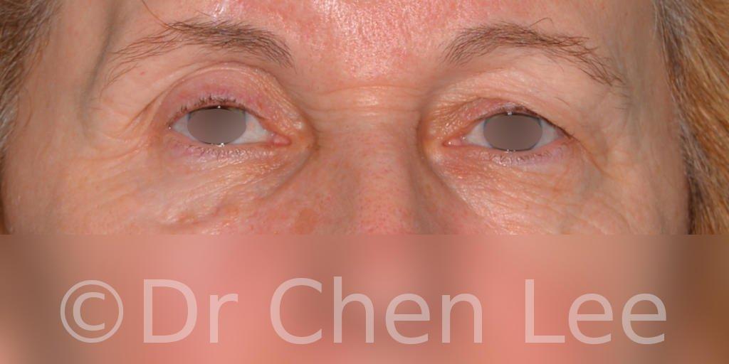 Chirurgie des paupières avant après blépharoplastie photo face #07