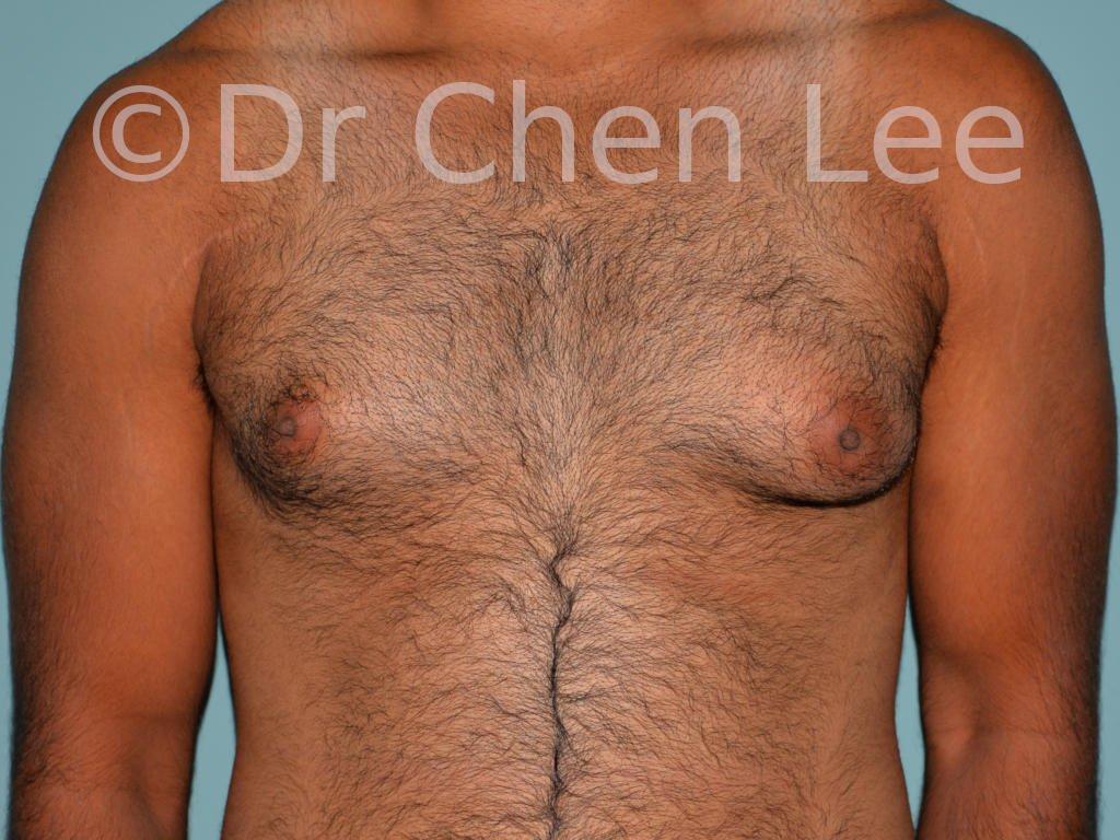 Gynécomastie avant après réduction mammaire homme photo face #02
