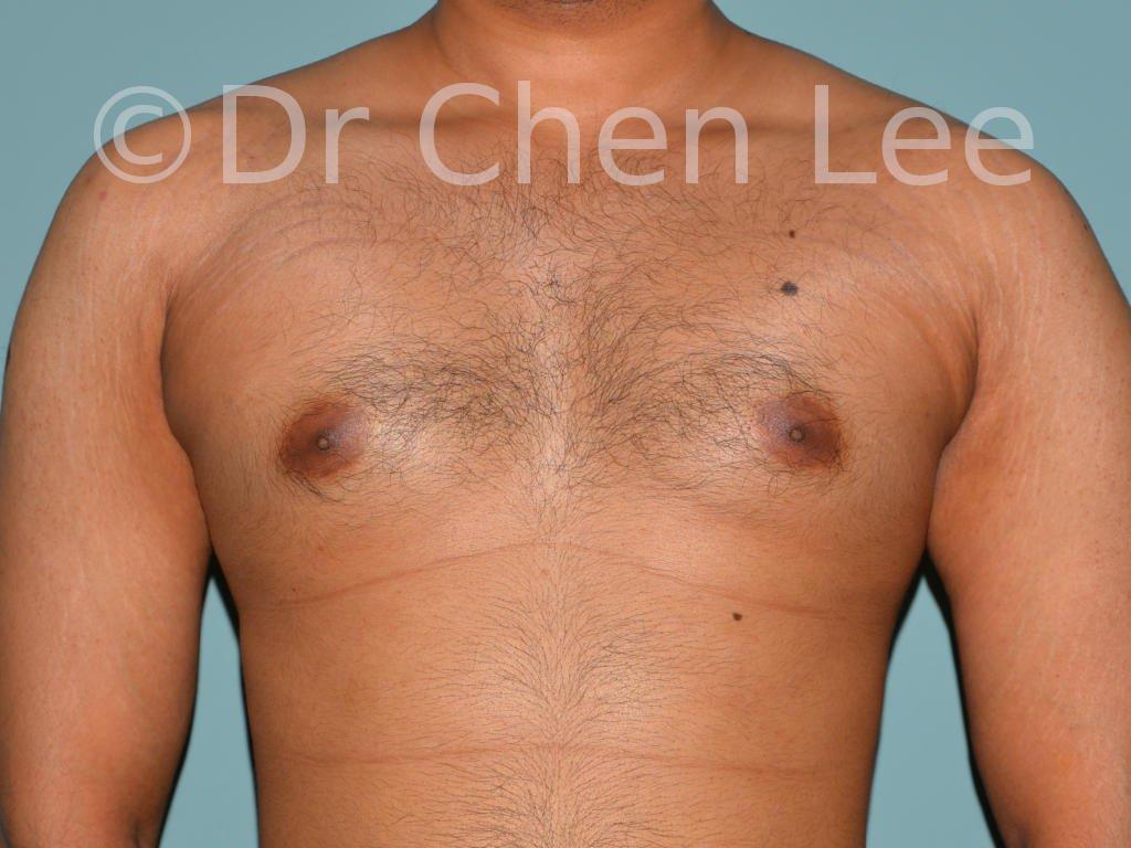 Gynécomastie avant après réduction mammaire homme photo face #06