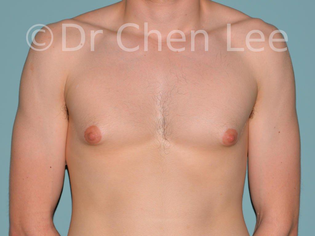 Gynécomastie avant après réduction mammaire homme photo face #14