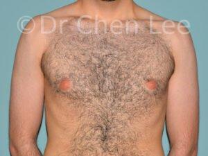 Gynécomastie avant après réduction mammaire homme photo face #10