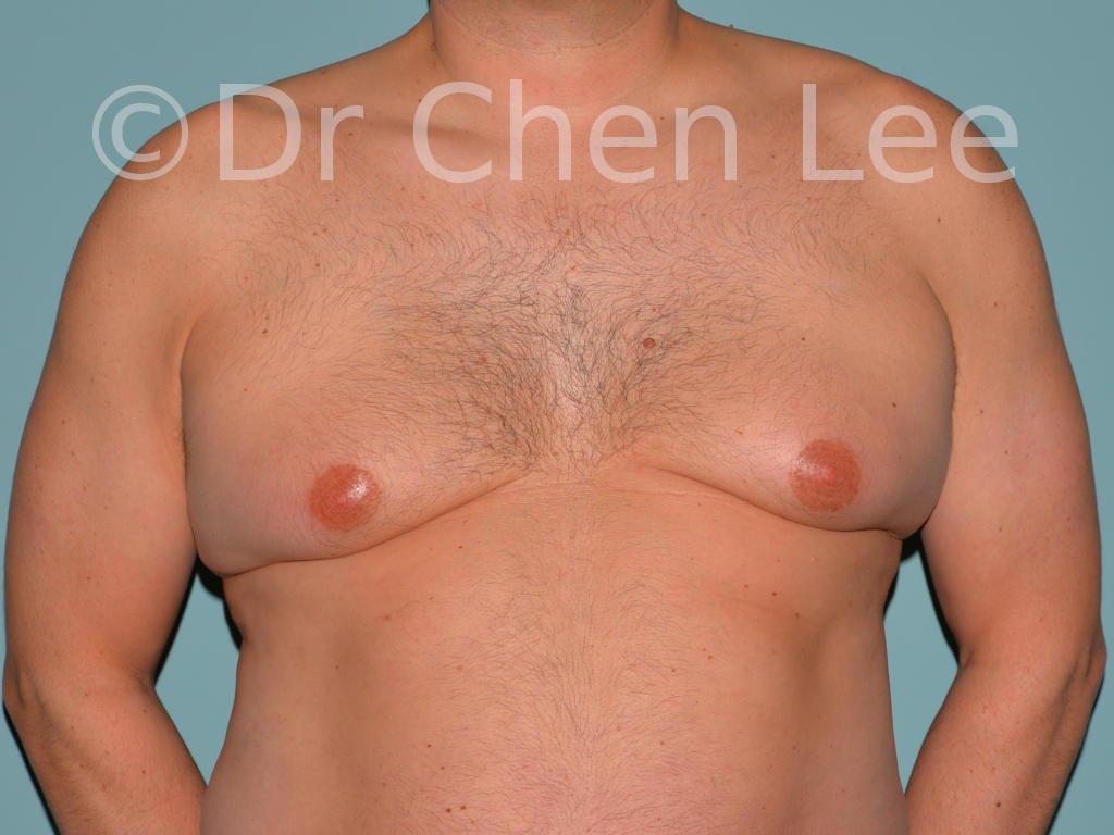Gynécomastie avant après réduction mammaire homme photo face #13