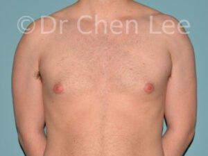 Gynécomastie avant après réduction mammaire homme photo face #09