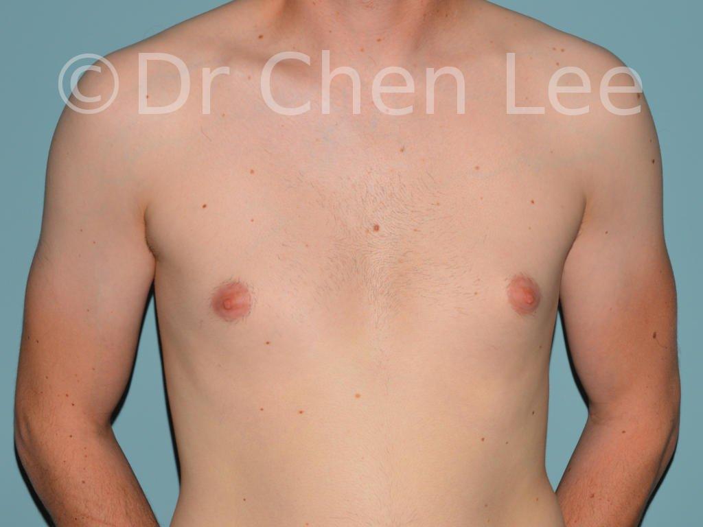 Gynécomastie avant après réduction mammaire homme photo face #11