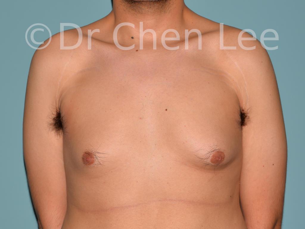 Gynécomastie avant après réduction mammaire homme photo face #03
