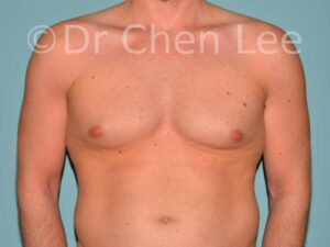 Gynécomastie avant après réduction mammaire homme photo face #07