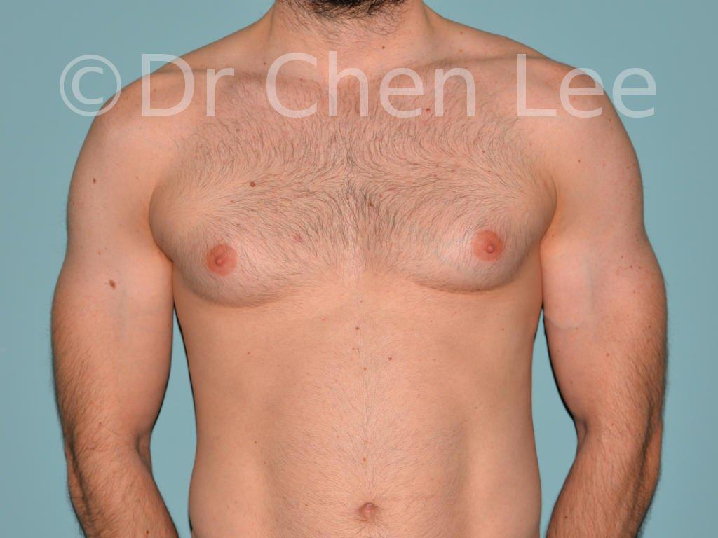 Gynécomastie avant après réduction mammaire homme photo face #04
