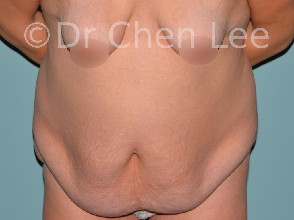 Abdominoplastie avant après redrapage abdomen photo face flex #13