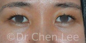 Blépharoplastie asiatique avant après chirurgie des paupières photo face #01