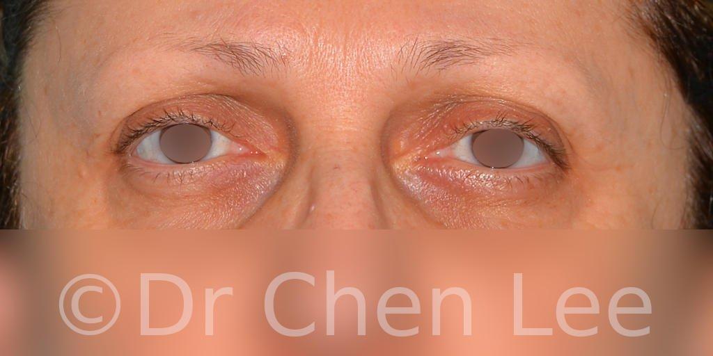 Chirurgie des paupières avant après blépharoplastie photo face #08