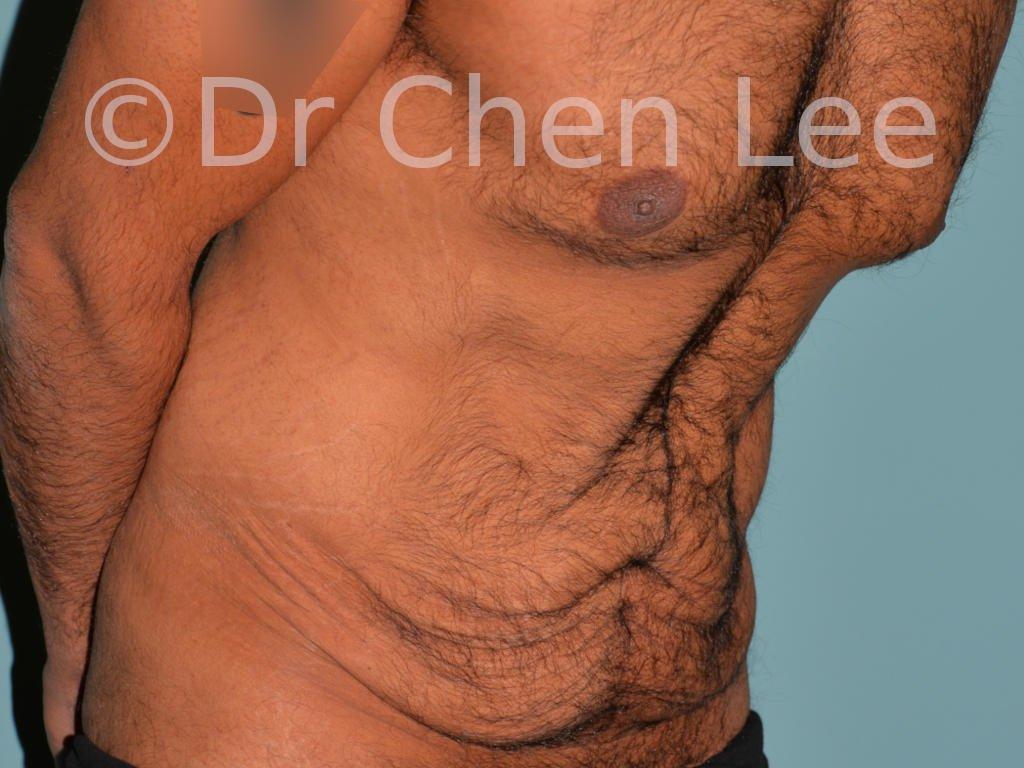 Abdominoplastie avant après redrapage abdomen photo oblique droite flex #10