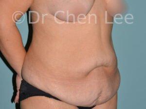 Abdominoplastie avant après redrapage abdomen photo oblique droite #05