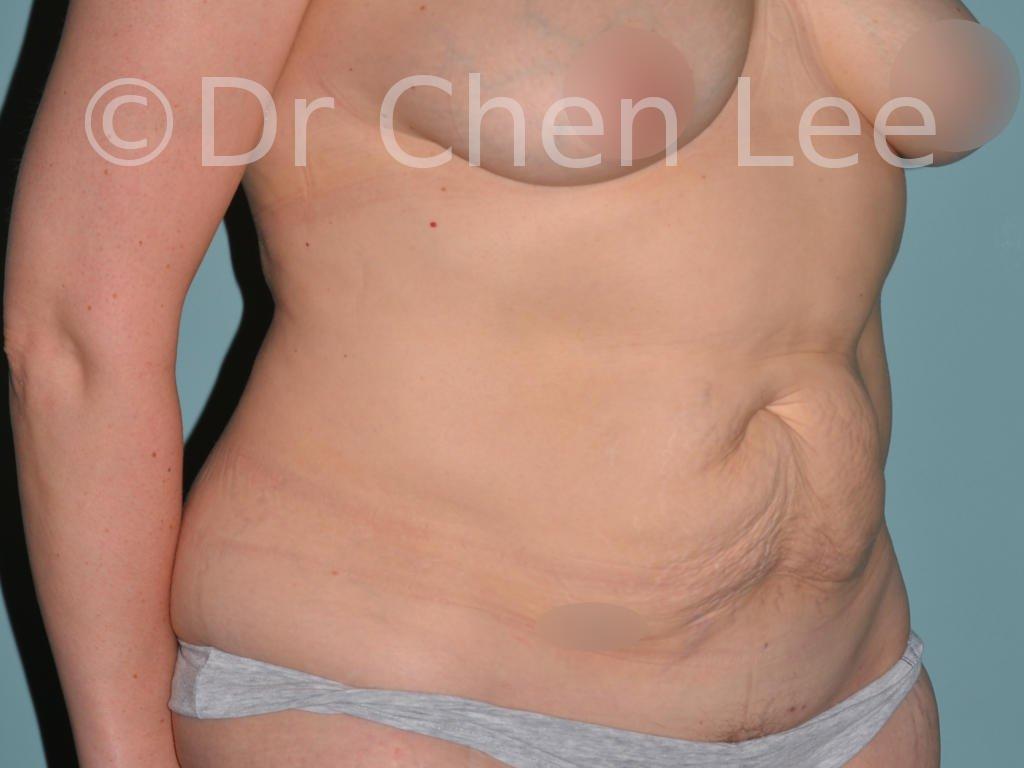 Abdominoplastie avant après redrapage abdomen photo oblique droite #12