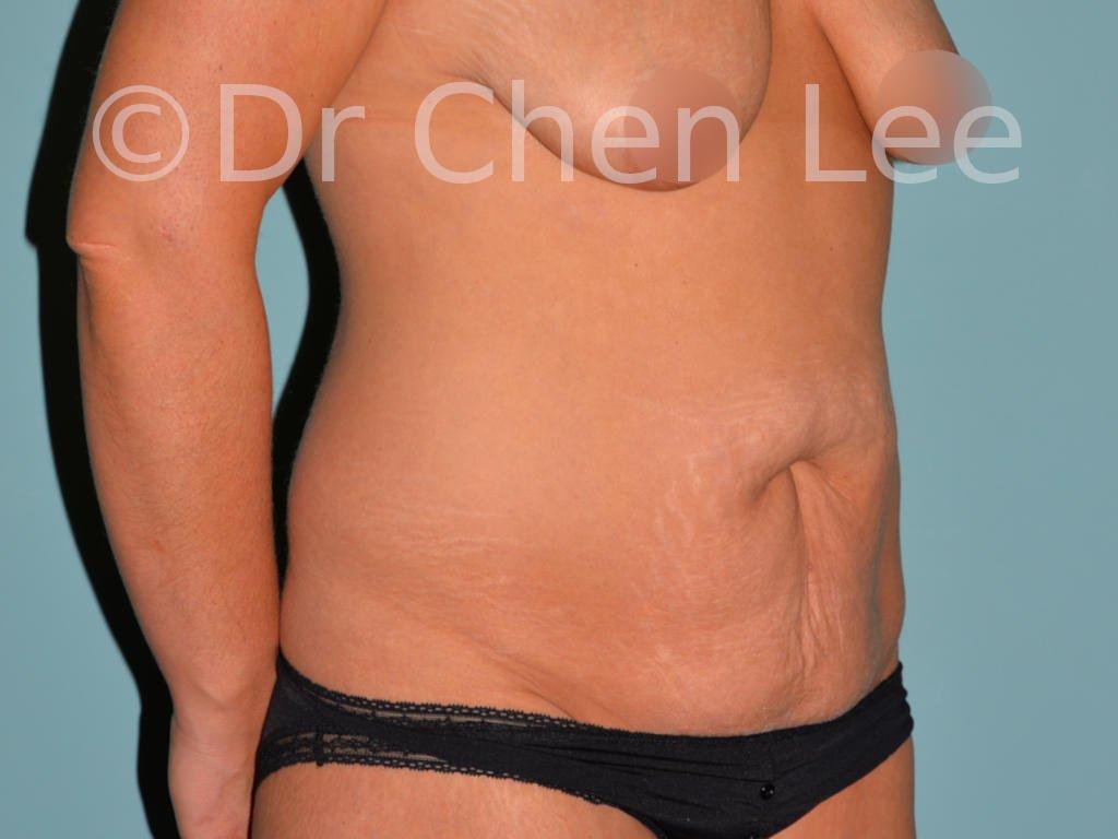 Abdominoplastie avant après redrapage abdomen photo oblique droite #03