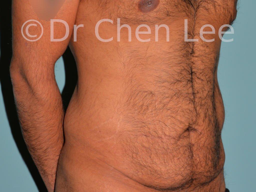 Abdominoplastie avant après redrapage abdomen photo oblique droite #10