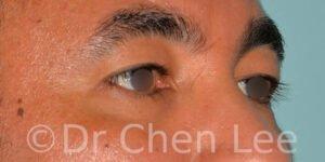 Blépharoplastie asiatique avant après chirurgie des paupières photo oblique droite #02