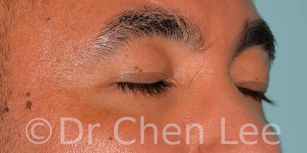 Blépharoplastie asiatique avant après chirurgie des paupières photo oblique droite fermée #02
