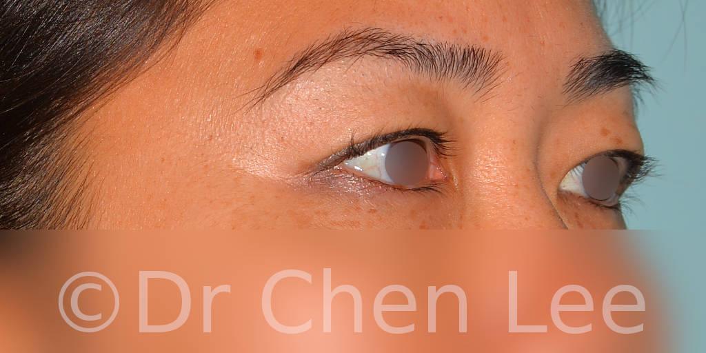 Blépharoplastie asiatique avant après chirurgie des paupières photo oblique droite #04