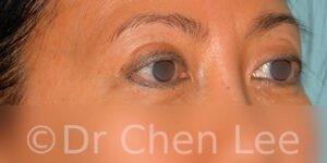 Blépharoplastie asiatique avant après chirurgie des paupières photo oblique droite #05