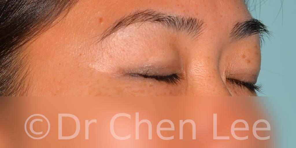 Blépharoplastie asiatique avant après chirurgie des paupières photo oblique droite fermée #04