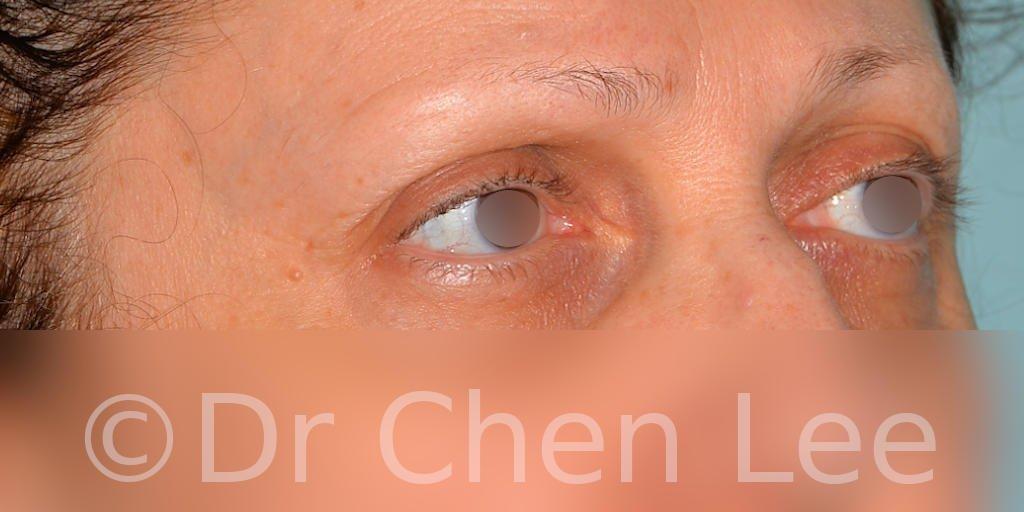 Chirurgie des paupières avant après blépharoplastie photo oblique droite #08