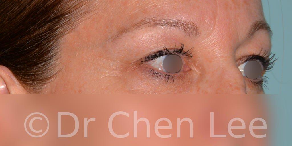 Chirurgie des paupières avant après blépharoplastie photo oblique droite #04