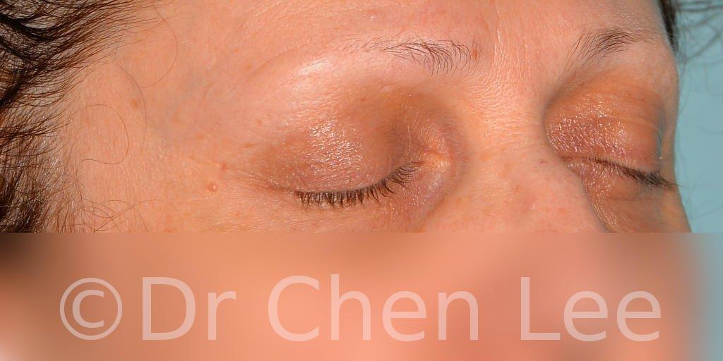 Chirurgie des paupières avant après blépharoplastie photo oblique droite fermée #08