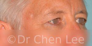 Chirurgie des paupières avant après blépharoplastie photo oblique droite #03