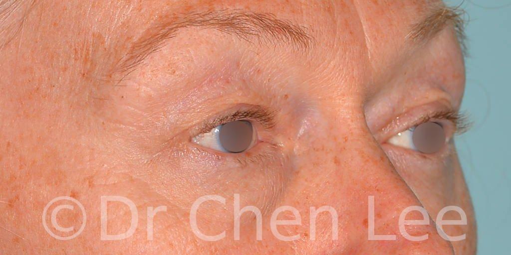 Chirurgie des paupières avant après blépharoplastie photo oblique droite #09