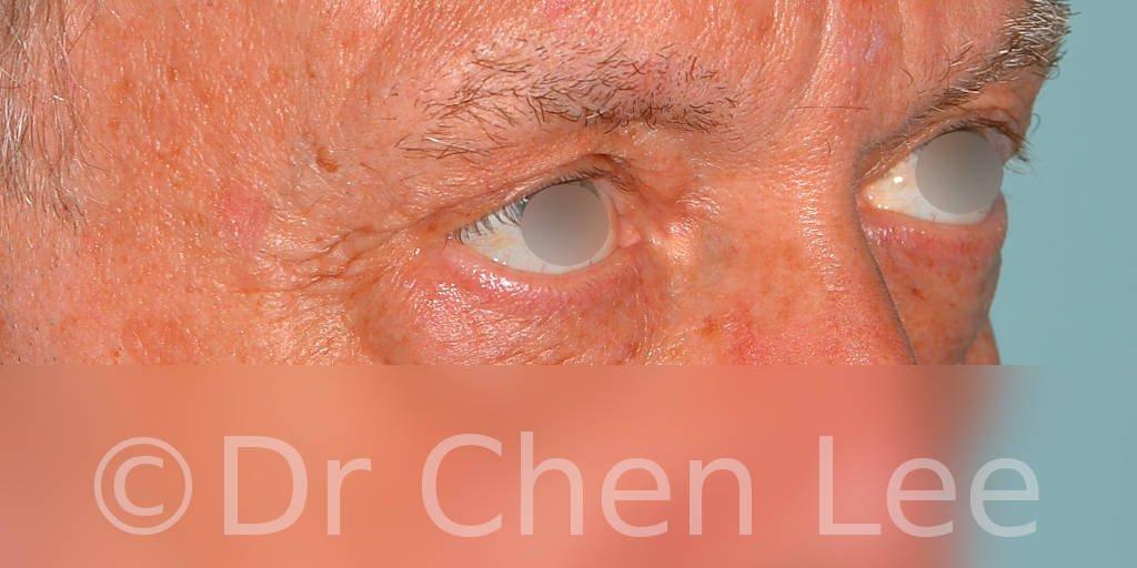 Chirurgie des paupières avant après blépharoplastie photo oblique droite #12