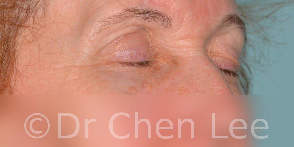 Chirurgie des paupières avant après blépharoplastie photo oblique droite fermée #07