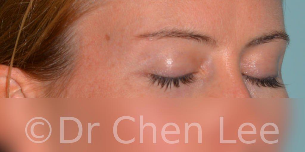 Chirurgie des paupières avant après blépharoplastie photo oblique droite fermée #02